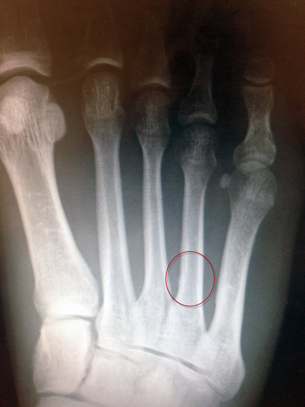 Stress fracture is visible on my 4th metatarsal